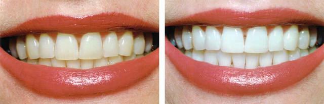 Домашні методи відбілювання зубів  плюси і мінуси 36204eab2ad97