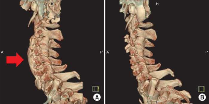 Остеохондроз шейного отдела симптомы и лечение форум