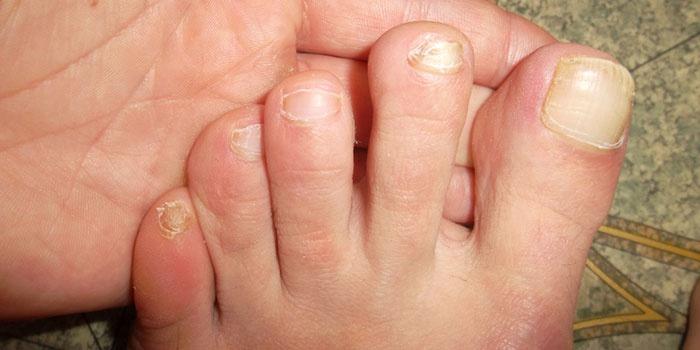 Начальная стадия грибок ногтей рук в руки