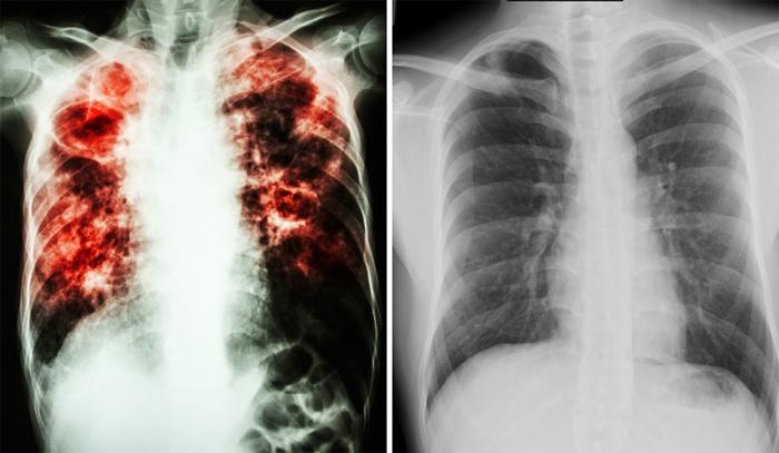 На Яремчанщині захворюваність на туберкульоз зросла вдвічі