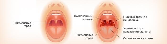 Грибки в горле после антибиотиков у ребенка