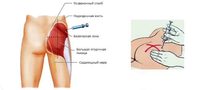Как сделать укол в ногу самому себе