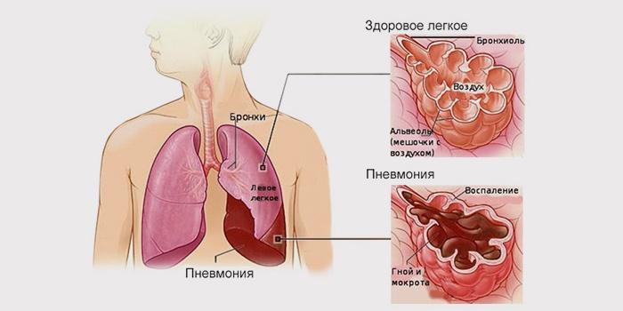 Запалений легень Симптоми