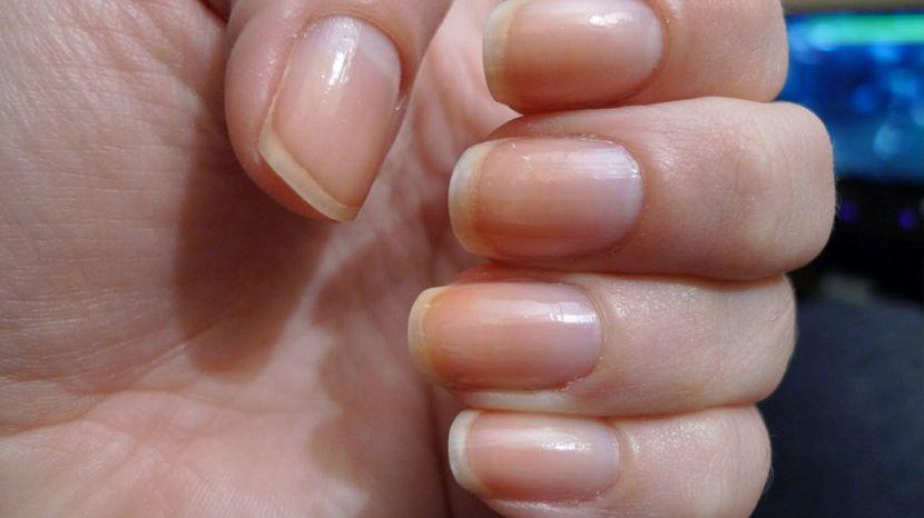 Грибок на ногтях рук как проявляется