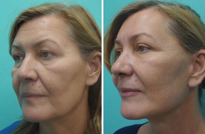 Эндоскопическая подтяжка лица до и после