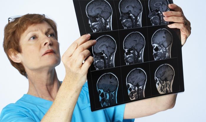 Симптоми менінгіту