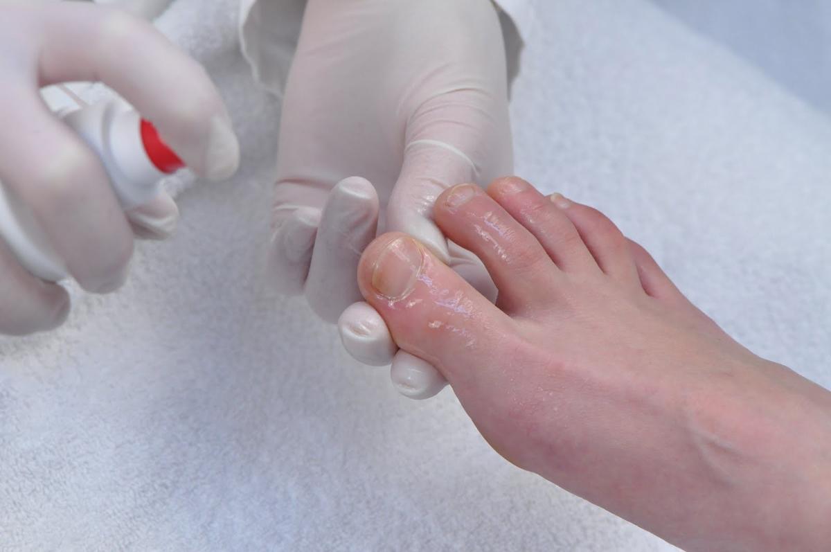 Уксусная ванночка для ног от грибка отзывы