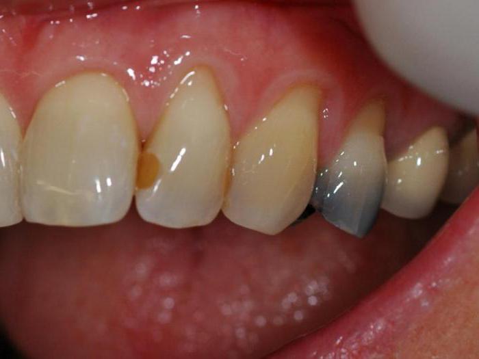 Для чего нужна временная пломба зуба