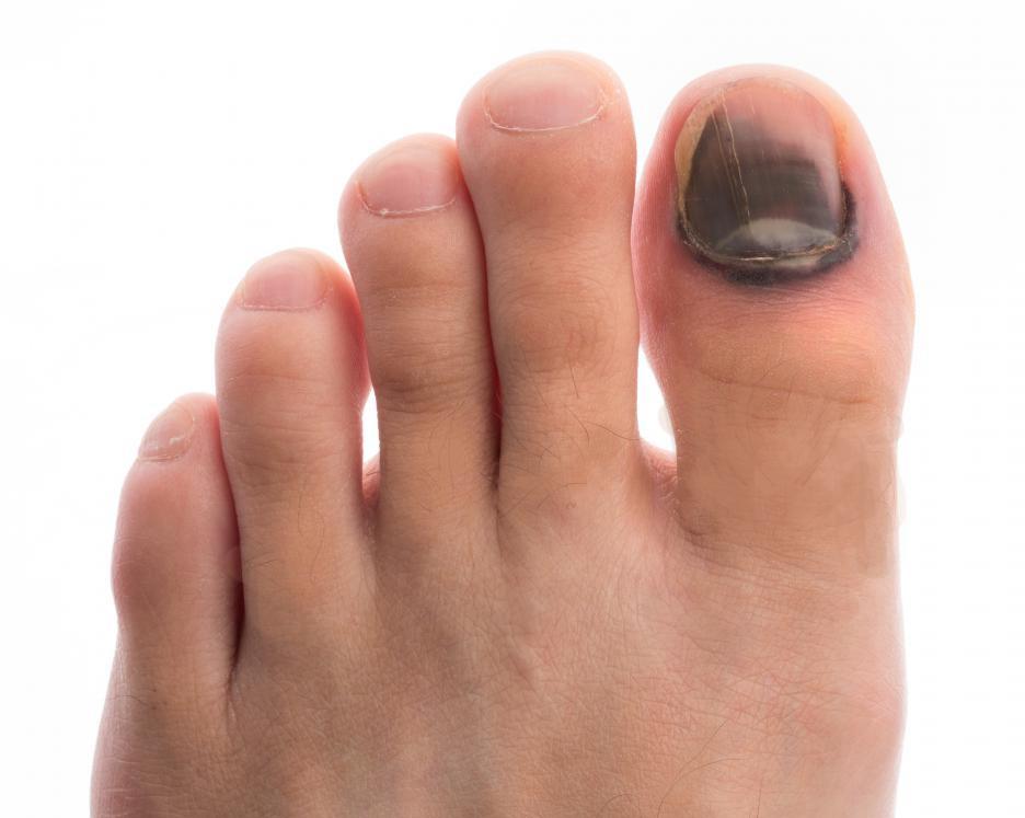 Удар ногтя на руке посинел ноготь