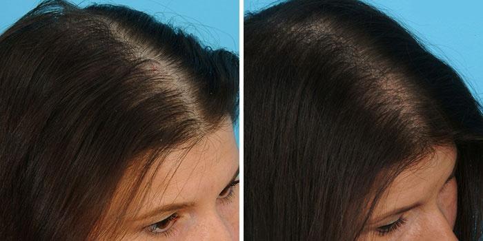 Фото алопеции до и после