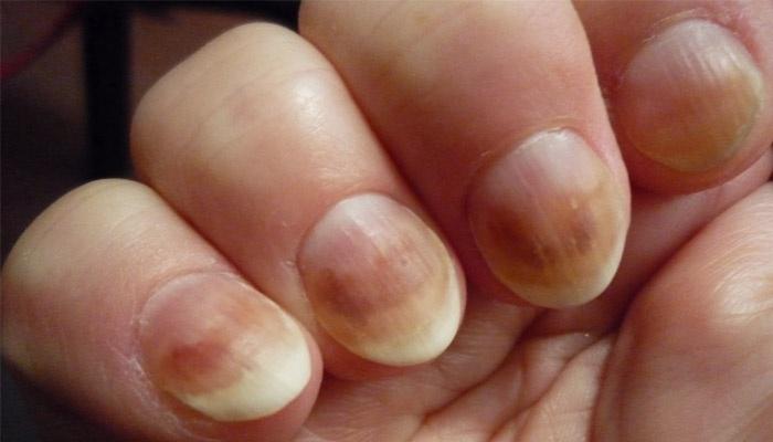 Фото грибка ногтя рук