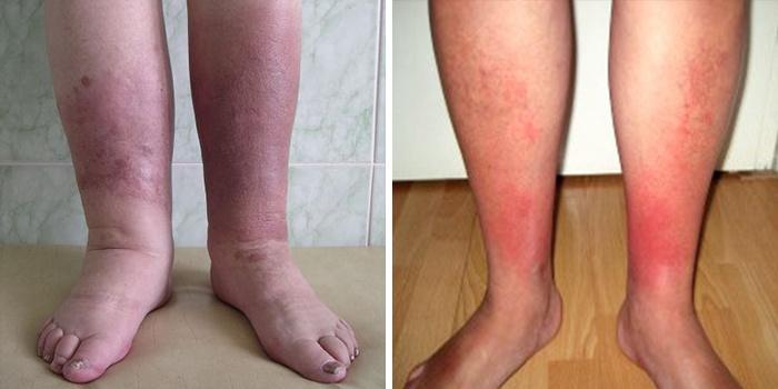 Если не лечить рожистое воспаление ноги в домашних условиях 446