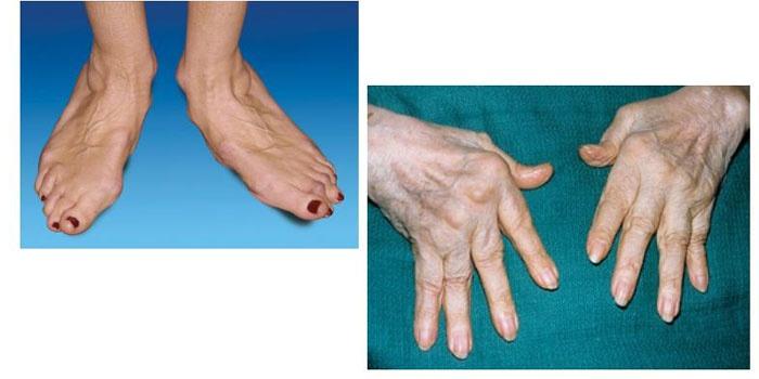 Ревматоидный артрит чем лечить в домашних условиях 720