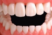 Скільки зубів у людини?