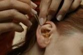 Як лікувати вухо борним спиртом