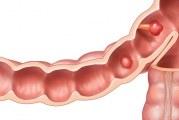 Поліпи в кишечнику — перші симптоми і діагностика, операція з видалення і лікування народними засобами