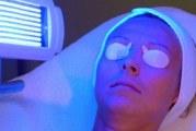 ПУВА-терапія — ефективність фототерапії для лікування псоріазу в клініці і домашніх умовах
