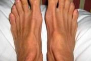 Видалення нігтів на нозі