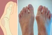 Що робити, якщо зростає кісточка на нозі